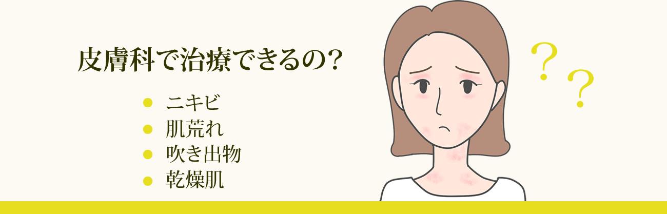 ニキビ、肌荒れ、吹き出物、乾燥肌 を皮膚科で治療できるの?